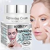 Flecken Creme, Whitening Cream, Aufhellung Creme, Altersflecken Creme, Gesicht Freckles Removal Cream Dunkle Flecken Creme gegen Pigmentflecken Altersflecken Hyperpigmentierung