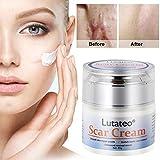 Narbencreme, Narbensalbe, Akne Narbe entfernen creme, Scar Fade Cream,Behandeln Sie neue und alte Narben - Aknenarben, Dehnungsstreifen und Narben