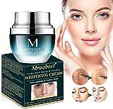Whitening Cream, Aufhellung Creme, Flecken Creme, Altersflecken Creme, Gesicht Freckles Removal Cream Dunkle Flecken Creme gegen Pigmentflecken Altersflecken Hyperpigmentierung - 30 ML