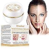 Whitening Cream, Aufhellende Creme, Altersflecken Creme, pigmentflecken entferner , Flecken Creme, Haut Aufhellende Creme gegen Altersflecken/Dunkle Flecken Sommersprossen Entferner