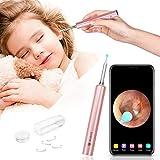 Ohrenreiniger Otoskop Ohrenschmalz Entferner Ohr Kamera - 1080p FHD Ohrreiniger Mensch Elektrisch Endoskop Spray Spirale Ohren Reinigung Ohrschmalz Reiniger für Baby Kinder Erwachsene mit iOS Android